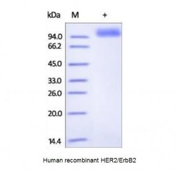 Human CellExp™ ErbB2 / HER2 / CD340, human recombinant