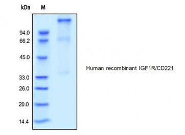 Human CellExp™ IGF1R/CD221, human recombinant