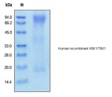 Human CellExp™ HAVCR1 / KIM1 / TIM1, human recombinant