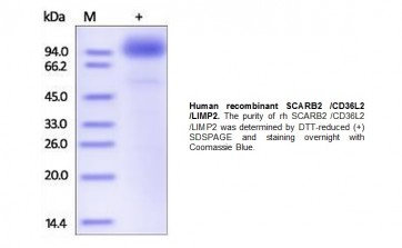 Human CellExp™ SCARB2 /CD36L2 /LIMP2, human recombinant