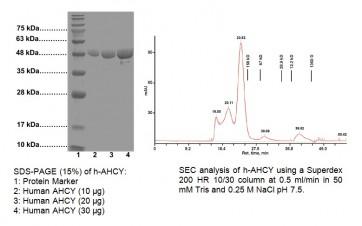 Active AHCY, human recombinant