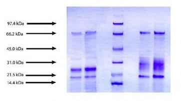 Cathepsin L (Active), Human Liver