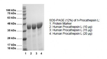 Procathepsin L, Human Recombinant