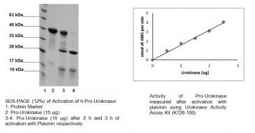 Pro-Urokinase, human recombinant