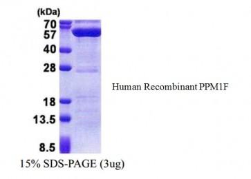 PPM1F, human recombinant