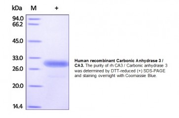 Carbonic Anhydrase 3, human recombinant