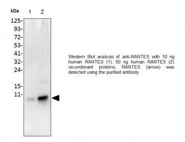 Anti-RANTES Antibody
