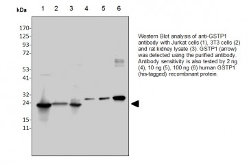 Anti-GSTP1 Antibody