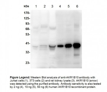Anti-AKR1B10 Antibody