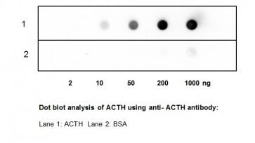 ACTH Polyclonal Antibody