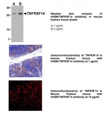 Anti-HVEM / TNFRSF14 Antibody
