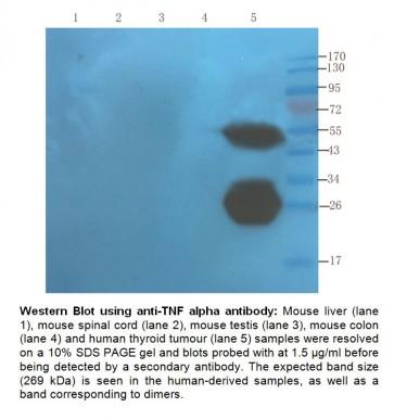 Anti-TNF alpha (Infliximab), Human IgG1 Antibody