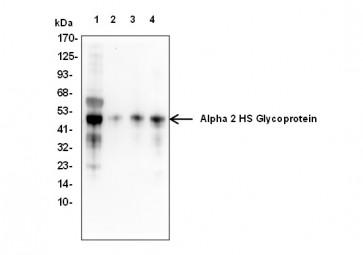 Alpha 2 HS Glycoprotein Antibody
