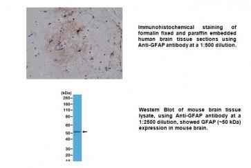 Anti-GFAP Rabbit Monoclonal Antibody