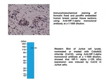 Anti-HIF-1-alpha, Rabbit Monoclonal Antibody