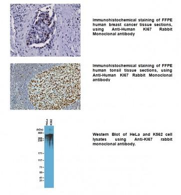 Anti-KI67 Rabbit Monoclonal Antibody
