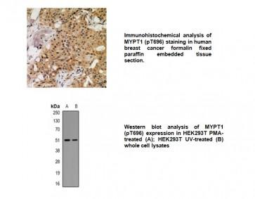Phospho-MNK1 (Thr250) Antibody