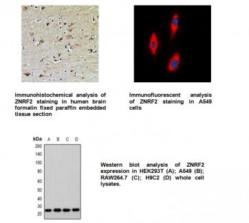 Anti-ZNRF2 Antibody