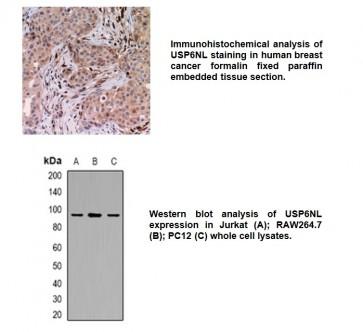 Anti-USP6NL Antibody