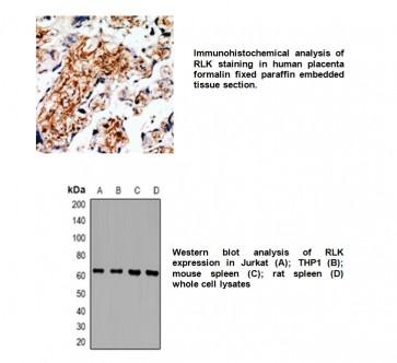 Anti-TXK Antibody