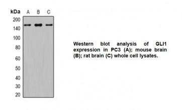 Anti-GLI1 Antibody