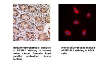Anti-EPS8L1 Antibody