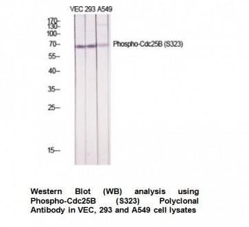 Phospho-Cdc25B (Ser323) Antibody