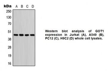 Anti-GOT1 Antibody