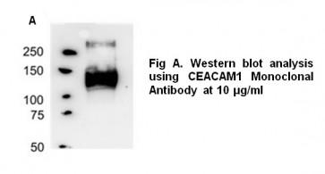 Anti-Angiopoietin-2 Antibody