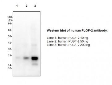 Anti-PLGF-2 Antibody