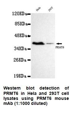 Anti-PRMT6 Antibody (2C3-F1-G1)