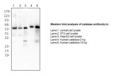 Anti-Catalase Antibody