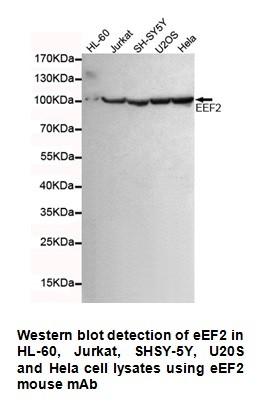 Anti-EEF2 Antibody (4B3-G7-H5)