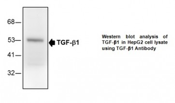 Anti-TGF-b1 Antibody (3D9)