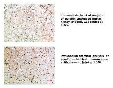 Anti-CD152 Antibody