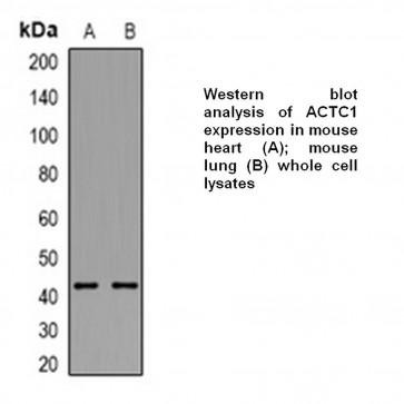 Anti-ACTC1 Antibody