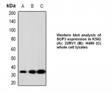 Anti-SCP3 Antibody