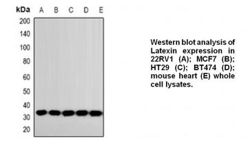 Anti-LXN Antibody