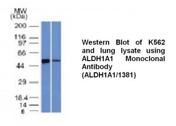 Anti-ALDH1A1 Antibody (ALDH1A1/1381)