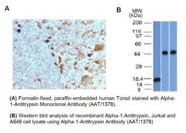 Anti-Alpha-1-Antitrypsin Antibody (AAT/1378)