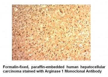 Anti-Arginase 1 Antibody (ARG1/1125)
