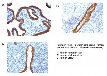 Anti-ASRGL1 Antibody (CRASH/1289)