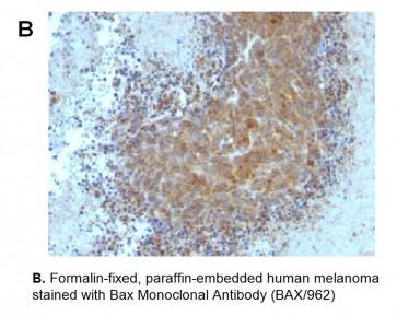 Anti-Bax Antibody (BAX/962)