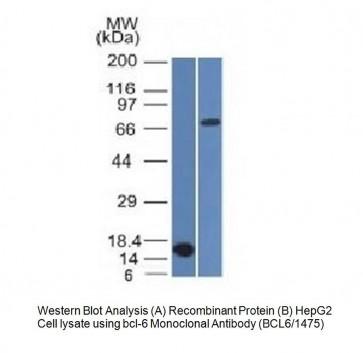 Anti-Bcl-6 Antibody (BCL6/1475)