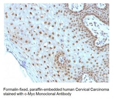 Anti-c-Myc Oncoprotein Antibody (MYC275)
