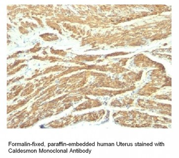 Anti-Caldesmon Antibody (SPM168)