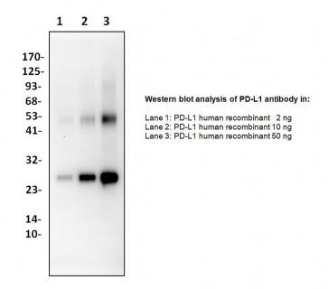 Anti-PD-L1 Antibody