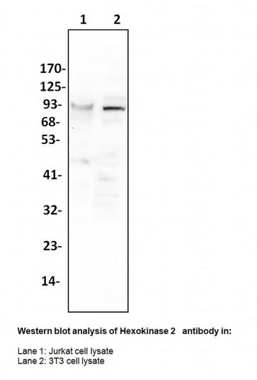 Anti-Hexokinase 2 Antibody