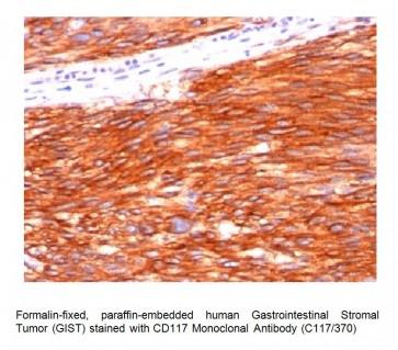 Anti-CD117/c-Kit Antibody (C117/370)