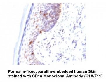 Anti-CD1a / HTA1 Antibody (C1A/711)